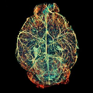 alzheimeralzheimerss study mouse brain blood vessels